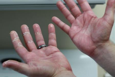Wie Sie Krebs aus Ihren Händen erkennen können